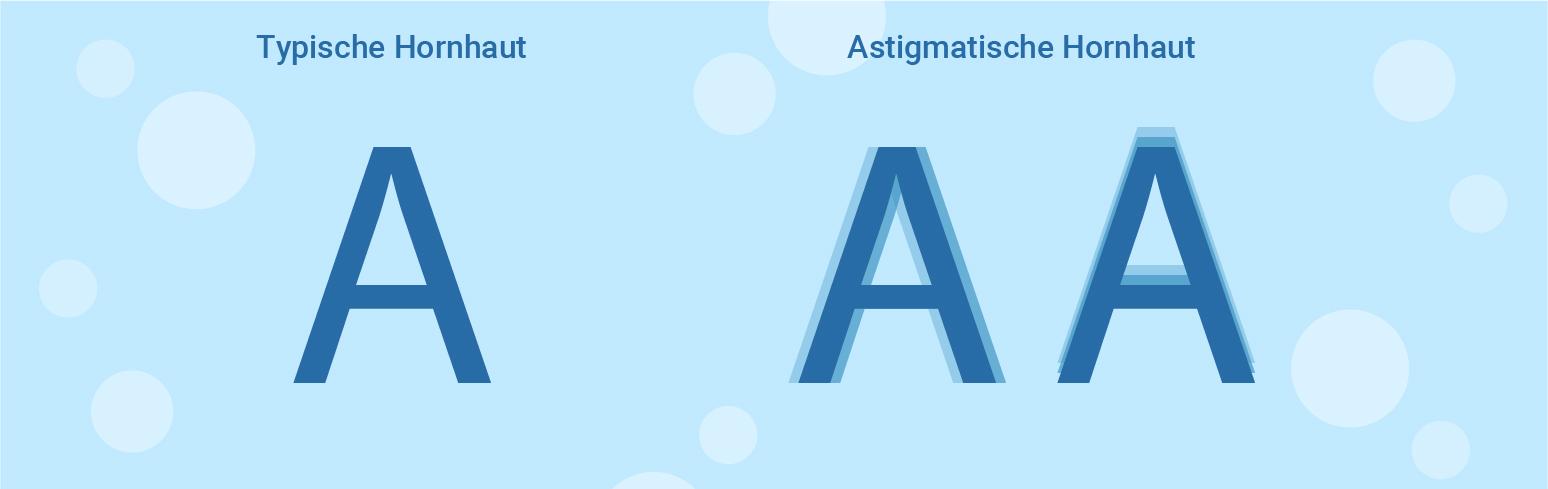 typical and astigmatism cornea